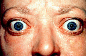 oftalmopatie