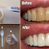HOW TO GET RID OF PLAQUE AND GUM DISEASE WITHOUT EXPENSIVE TREATMENS