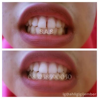 Hasil perbaikan gigi depan hitam berlubang