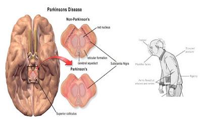 Cara Menyembuhkan Parkinson Secara Alami