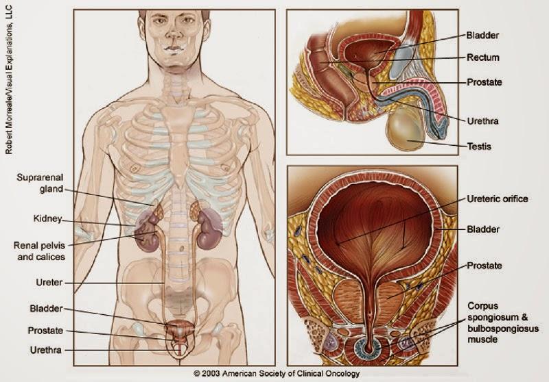 Obat Tradisional Kanker Prostat Yang Efektif