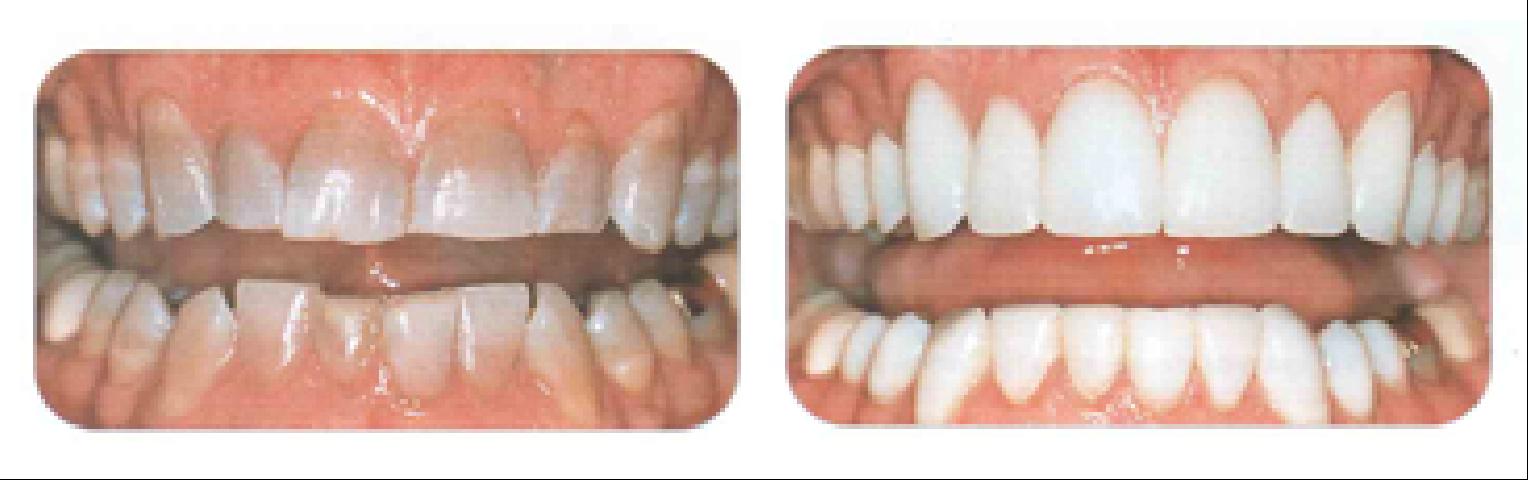 фото виниры до и после