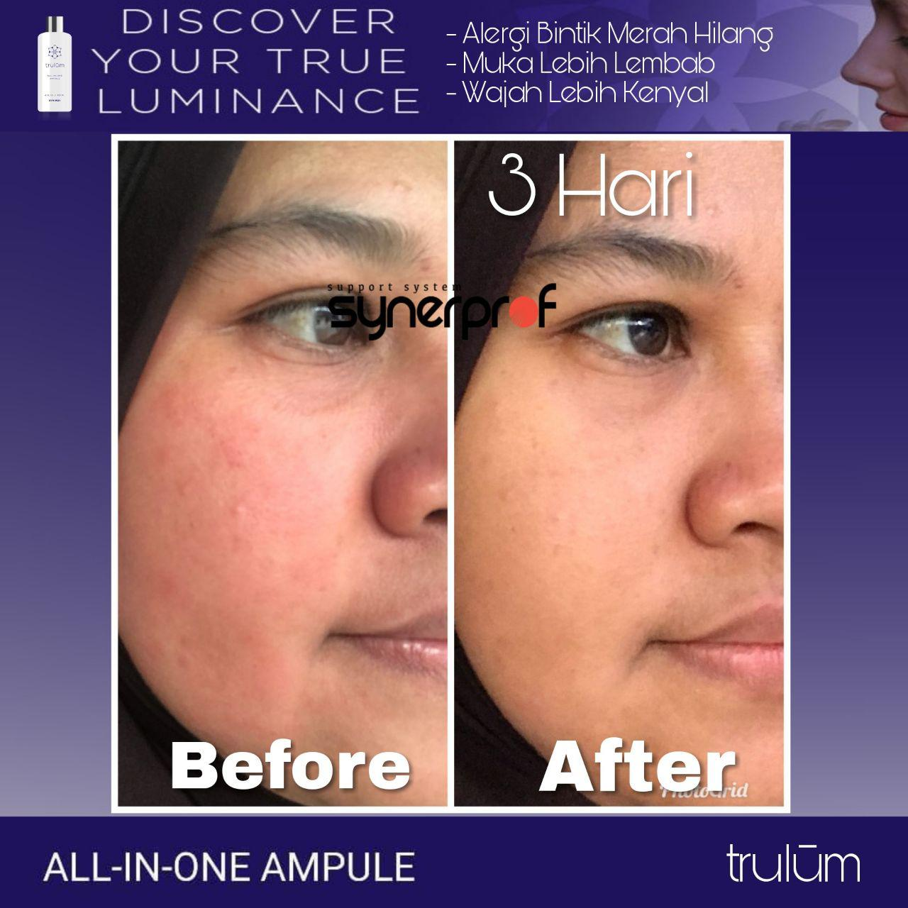 Jual Trulum All In One Ampoule Di Pulau Laut WA: 08112338376
