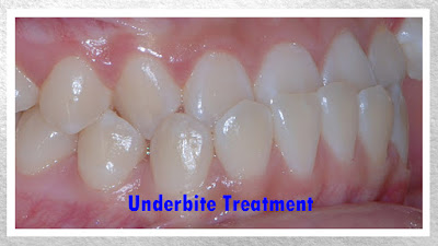 Non-Extraction & Surgery Underbite Treatment Video, Georgia Orthodontic Care, Lawrenceville, 30043