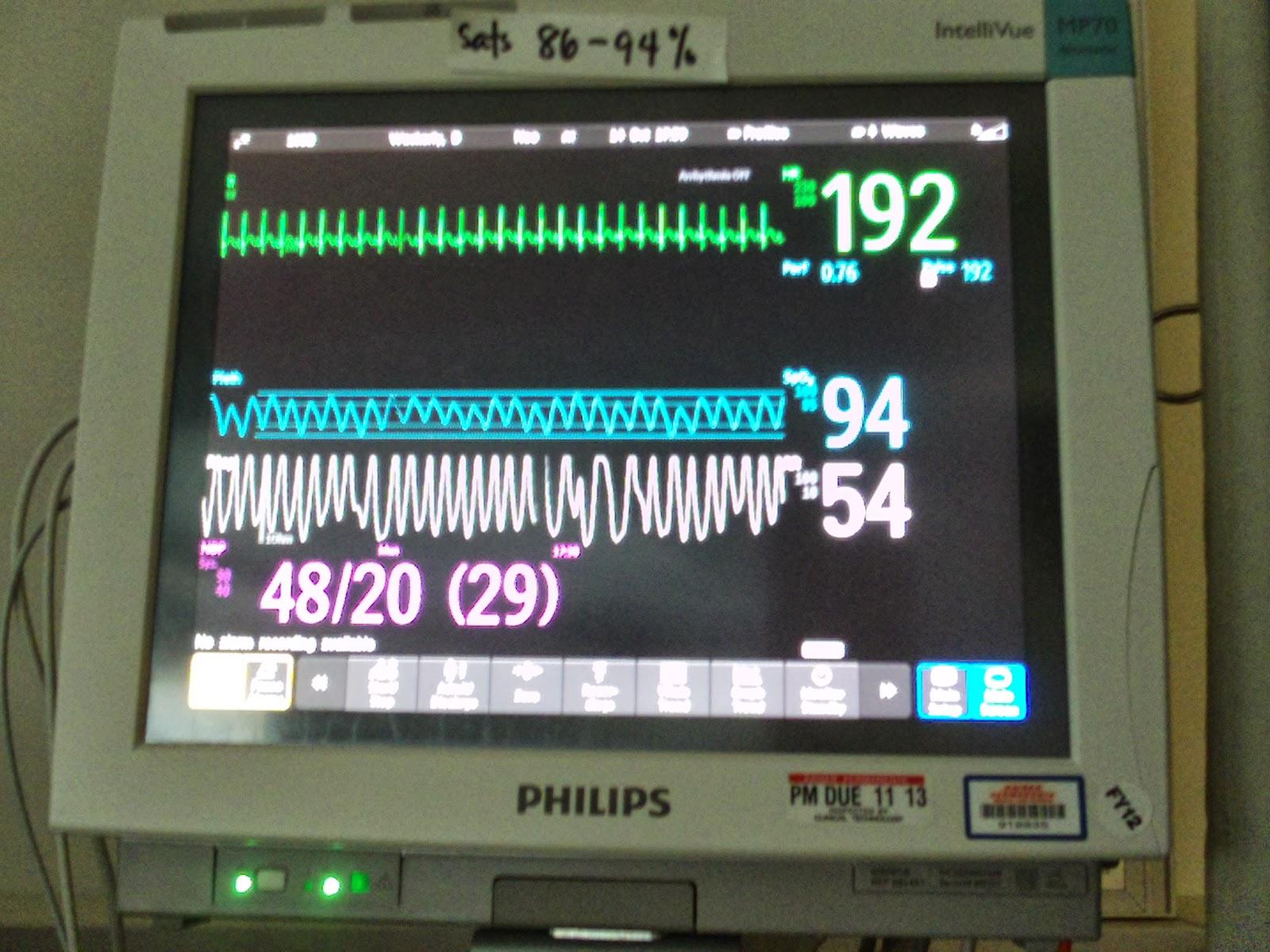 Hospital Heart Rate Monitor | www.imgkid.com - The Image ...