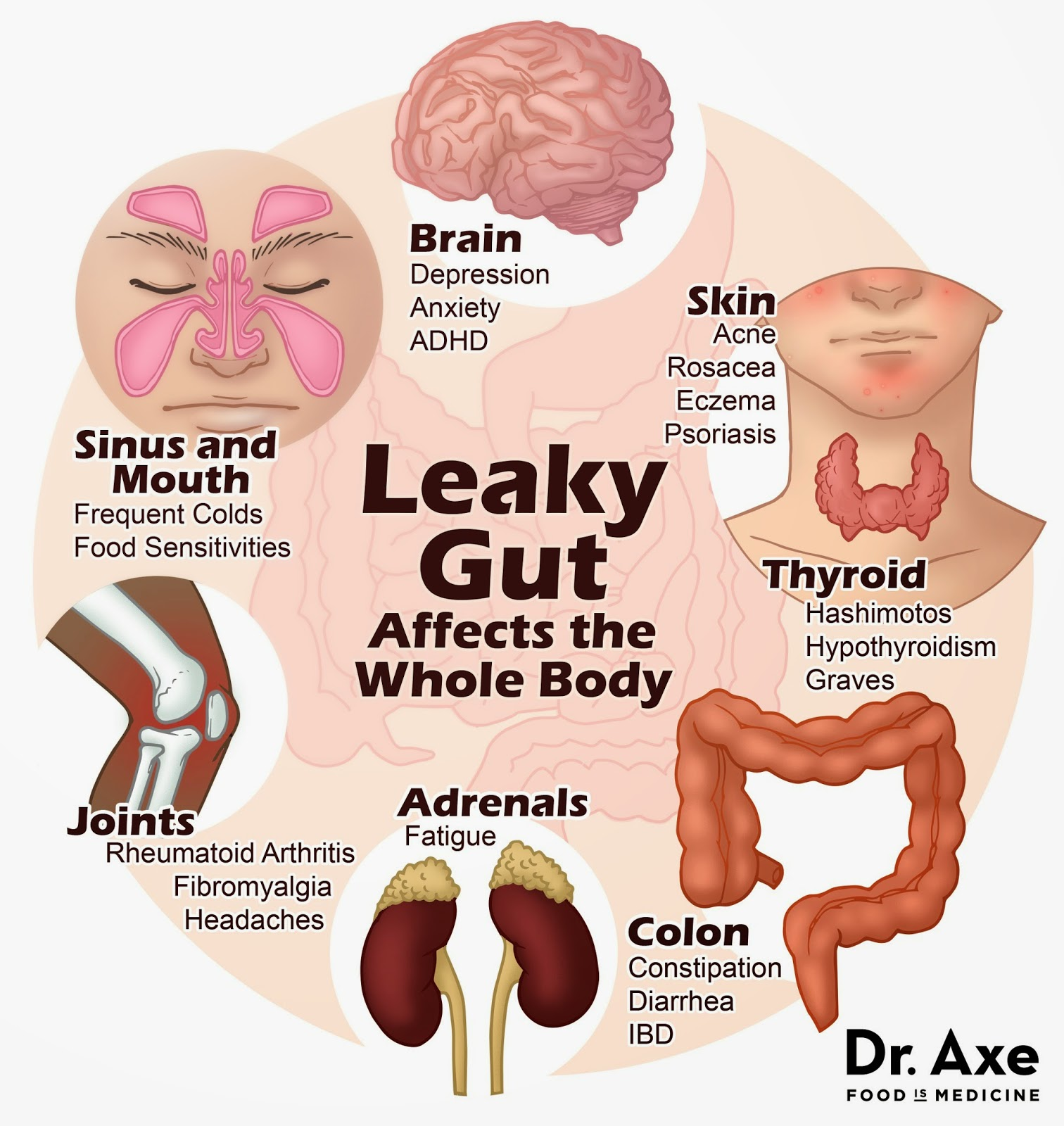 leaky gut skin sinus thyroid acne psoriasis causes cystic