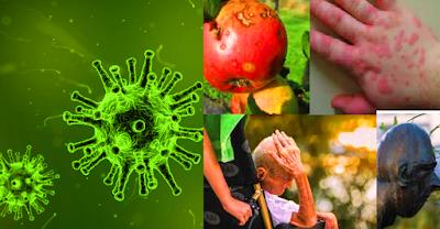Penyakit Yang Disebabkan Virus Virus dalam hidupnya sangat bergantung kepada sel inangnya, sel inang yang terinfeksi dalam hidupnya akan terganggu metabolisme kehidupannya atau dapat dikatakan terkena penyakit. Penyakit-penyakit apakah yang dapat ditimbulkan oleh infeksi virus?