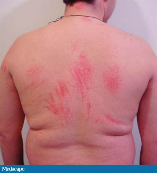 Podoshvennyy la psoriasis el tratamiento las revocaciones
