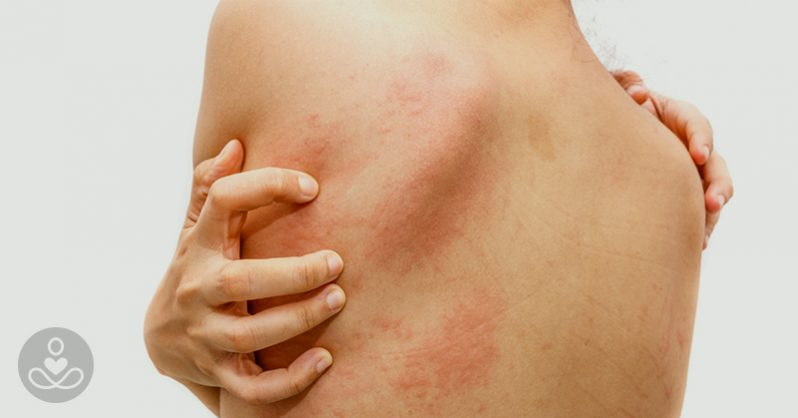 stress, back pain, rashes