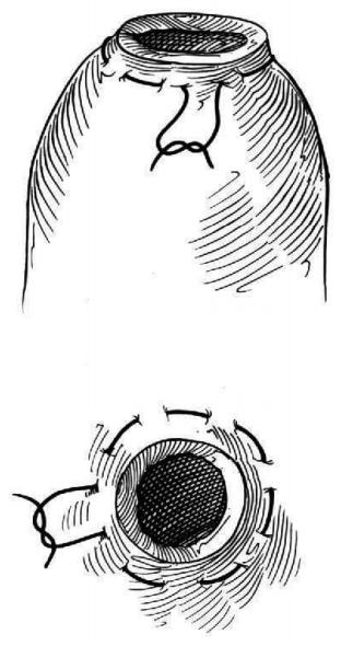 """BOLSA DE TABACO  Também denominada """"Bolsa de Fumo. É uma  sutura circular empregada nas cirurgias do  digestório, nas anastomoses, fixação de cânulas  e sondas e também utilizada no fechamento de  pequenos ferimentos circulares."""