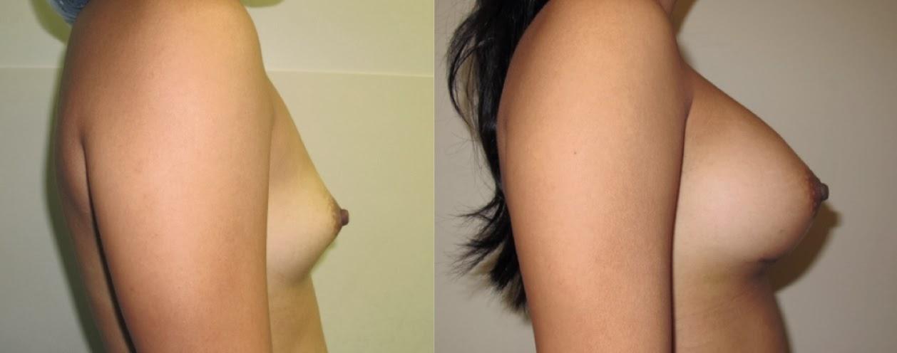 antes e depois do silicone