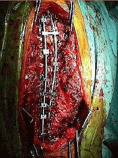 脊椎側彎, 脊椎側彎手術, 脊椎側彎手術風險, 脊椎側彎開刀,脊椎側彎治療, 脊椎側彎 物理治療