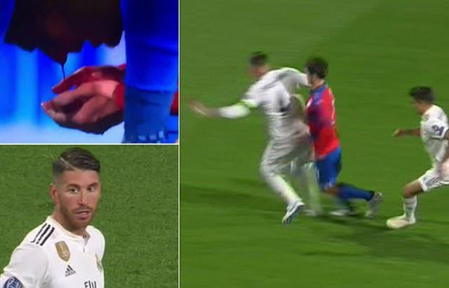 Real Madrid's Ramos Leaves Viktoria Plzen Defender Milan Havel With Bloody Nose During UCL Clash