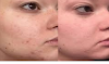 I Finally Found the First Hyperpigmentation Treatment That Actually Works on My Skin
