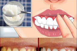 Here Are 5 Tips On How To Reverse Cavities & Heal Tooth Decay Naturally