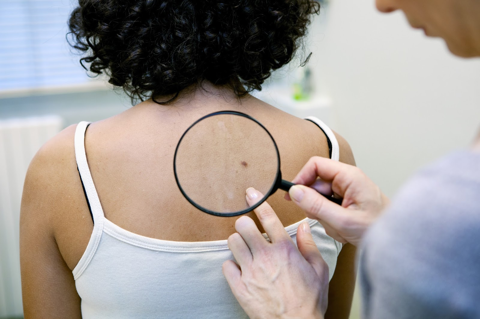 Doctor examines a patient's skin for potential skin cancer