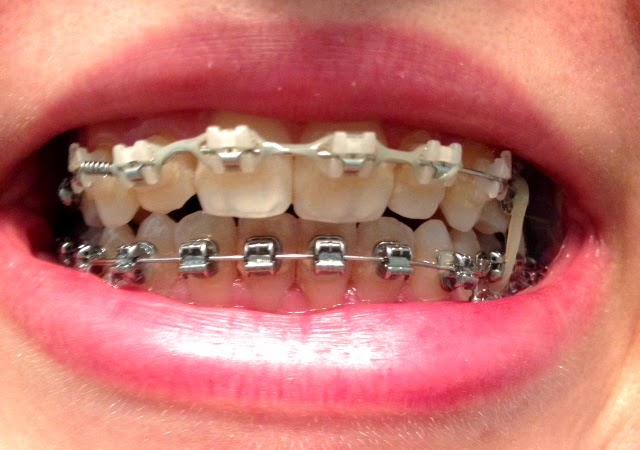 how to get your braces off early