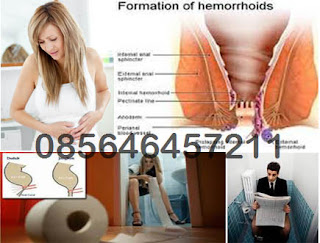 Hemoroid Luar (Eksternal) dan Cirinya