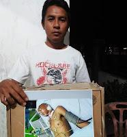 Amar, Pemuda Tertancap Panah di Bagian Leher Butuh Biaya Pengobatan Rp35 juta