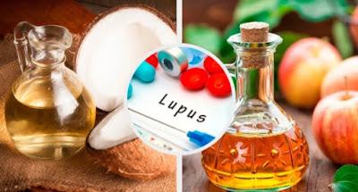 remèdes pour lutter contre le lupus
