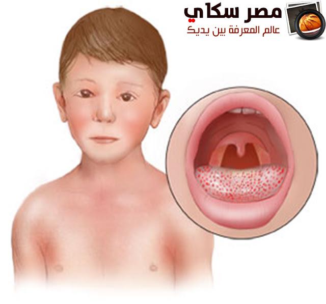 كيفية التمييز بين مختلف أنواع الطفح الجلدى Skin rash