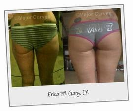 Butt Enlargement Before & After Pics