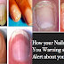 5 Dangerous Signs Your Fingernail Tells You About Your Overall Health