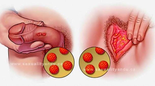 como se contrae virus del papiloma humano