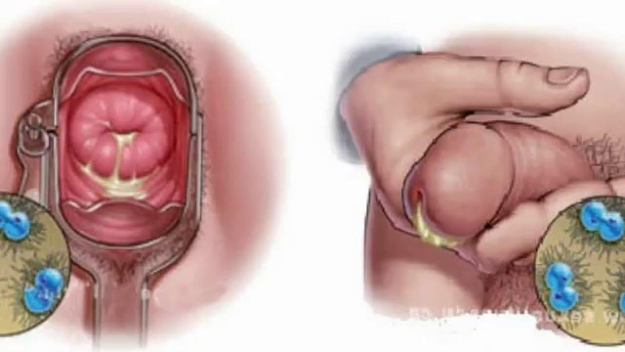 gonorrea en hombres como se contagia