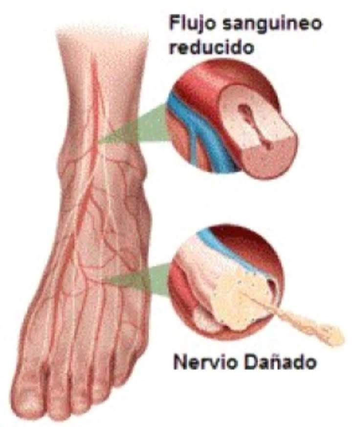 Síntomas de dolor de espalda severo