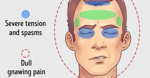 7 Obat Alami Untuk Atasi Sakit Kepala dan Migren