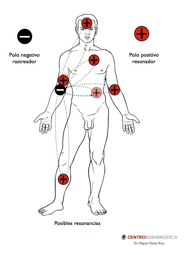 biomagnetismo pares síntomas de diabetes