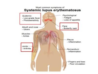 Tanda-tanda penyakit SLE, LUPUS, Kesan penyakit SLE, ciri-ciri pesakit SLE