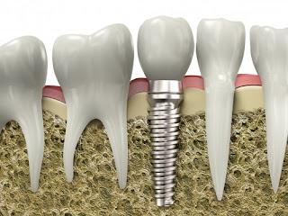 Làm răng implant ở đâu tốt tại Sài Gòn
