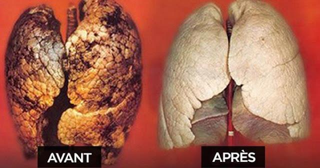 Nettoyer les poumons: Purifier et tonifier ses poumons avec les plantes