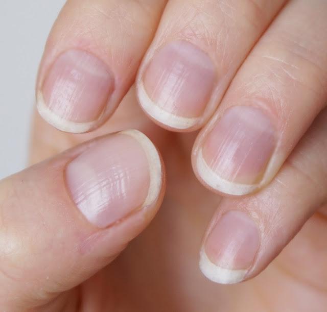 Meine Nägel nach der Öl-Kur