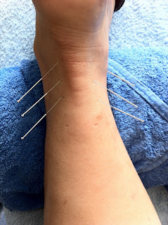 Dry Needling Ankle Sprain or Pain Katelyn Pertile Physical Therapy and Wellness Green River Wyoming