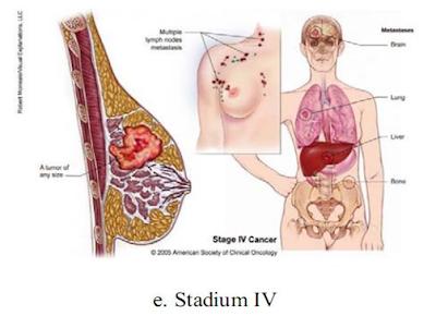 Tumor Payudara Stadium 4