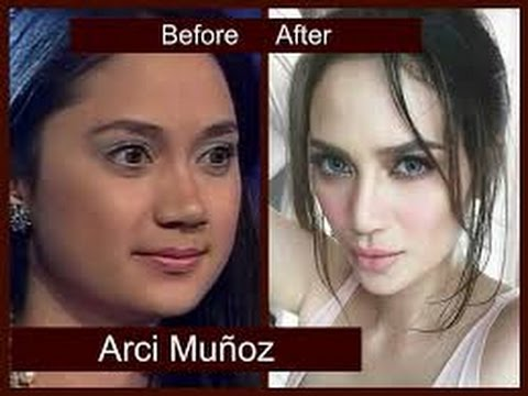 Unrecognizable! Erich Gonzales Looks so Different in These Never Before Seen Old Photos. Check Them out Here!