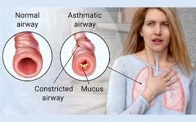 Tata Cara Mengontrol Penyebab Penyakit Asma dan Mencegah Penyebab Penyakit Asma