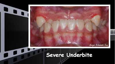 Severe Underbite Teeth Treatment Video, Georgia Orthodontic Care, Lawrenceville, 30043