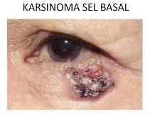 Obat Karsinoma Sel Basal