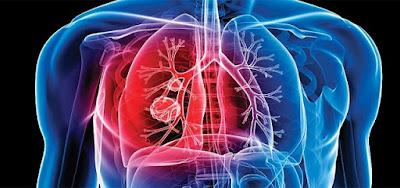 https://www.recifit.com/tuberculosis-symptoms-and-treatment/