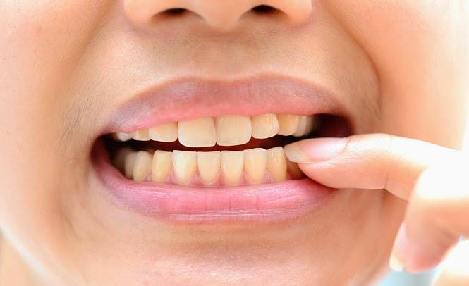 Kết quả hình ảnh cho do bị mòn men răng khi mà ăn uống