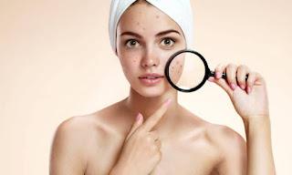 how-to-treat-facial-acne