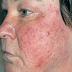 Phải làm gì khi bị bệnh viêm da tiết bã ở mặt?
