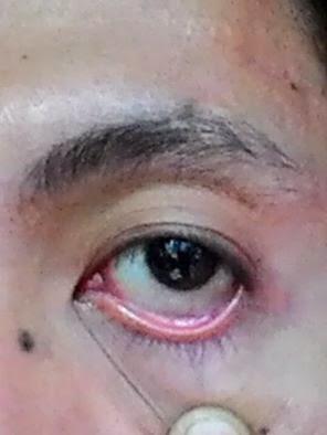Cara Mengobati Sakit Mata Dengan Cepat