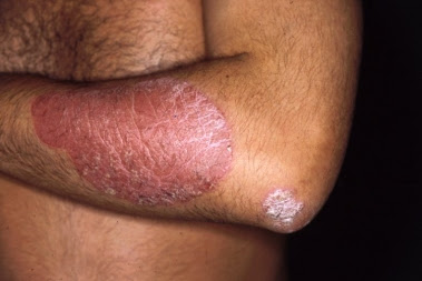 Psoriasis en placas o vulgar
