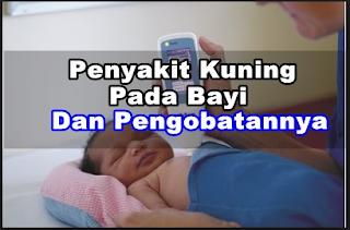 Cara  mengatasi bayi kuning secara tradisional,obat sakit kuning pada bayi