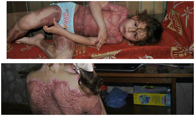 صور مؤلمة| أرادت أن تلعب على الإنترنت.. لكن ما حصل للطفلة كارثة كلمات سحرية شوهت طفلة الـ5 سنوات إلى الأبد